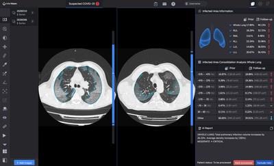 lnferRead CT Pneumonia™ compara el progreso de la infección y cuantifica los cambios a lo largo del tiempo (PRNewsfoto/InferVision AI)